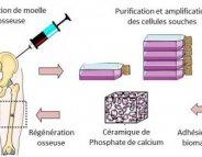 Des cellules souches pour consolider une fracture