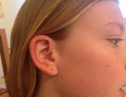 Boucles d'oreilles : comment éviter les infections ?