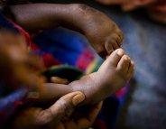 Enfance : le handicap, trop souvent facteur d'exclusion