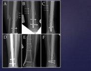 Les cellules souches pour consolider les fractures