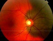Le mélanome de l'œil : les gènes plutôt que le soleil!