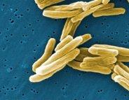 Tuberculose : une piste pour la contrer ?