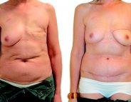 Cancer du sein : l'autogreffe proposée aux femmes