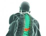 Fractures vertébrales : les implants confirment leurs bénéfices