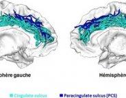 «Intelligence»: la forme du cerveau ne révèle pas tout