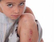 Points de suture : comment rassurer votre enfant ?