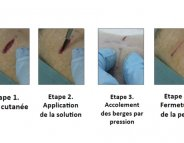 Finie la suture, vive le collage !