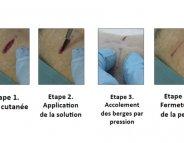 Finie la suture, vive le collage !