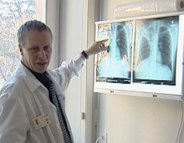 En finir avec la tuberculose d'ici 2035 ?