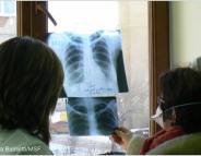 Tuberculose : traiter enfin la résistance