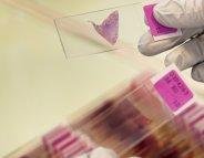Le cancer du poumon… inscrit dans nos gènes