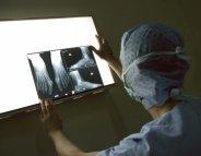 Radiologie: toujours plus d'examens