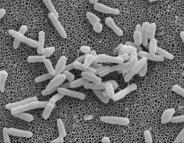 Tuberculose : résister contre la multi-résistance