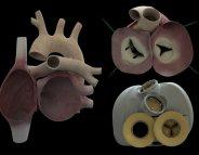 Cœur artificiel Carmat : un défaut au niveau des moteurs