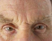 Maladie de Parkinson : une anomalie en forme de pâtes
