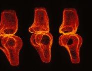Un implant vivant pour régénérer le cartilage