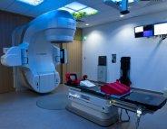 Radiothérapie : un test pour prédire le risque de séquelles