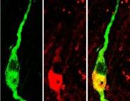 Syndrome des ovaires polykystiques : traiter en passant par le cerveau…
