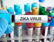 Zika et microcéphalie : un risque élevé le 1er trimestre de grossesse