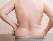 Obésité : une nouvelle protéine accusée