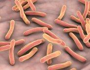 Tuberculose : en finir avec l'épidémie d'ici 2030