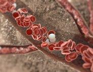 Chirurgie bariatrique : du bon cholestérol chez les jeunes !