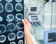 Des ultrasons contre les tumeurs cérébrales