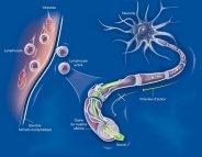 Un anticorps contre la sclérose en plaques