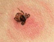 Le gouvernement dévoile son plan contre la maladie de Lyme