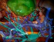 Chirurgie : des tumeurs projetées en 3D