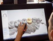 Des prothèses dentaires… en 3D