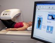 Ostéoporose : répondre aux attentes des patients