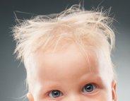 Syndrome des cheveux incoiffables, tout est dans les gènes