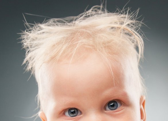 Uncombable hair syndrome – it's all in the genes