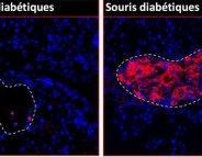 Contre le diabète de type 1 : l'espoir d'un neurotransmetteur