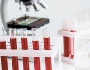 Don du sang : assurer le flux permanent