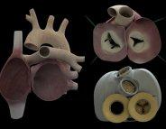 Cœur artificiel total: CARMAT suspend son étude pivot
