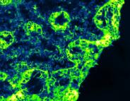 Syndrome de l'intestin irritable : une enzyme du côlon coupable
