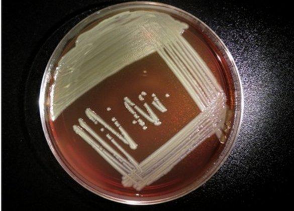 Maladies émergentes : une bactérie ultra-mutante