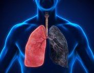 Cancer du poumon : une thérapie ciblée pour 15 mois de rémission