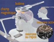 Anxiété : la stimulation magnétique transcrânienne à l'étude