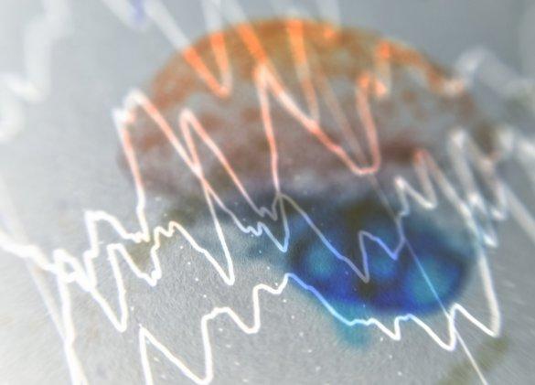 Epilepsie : des anomalies cérébrales en dehors des crises ?