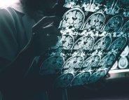 Un modèle animal pour mieux comprendre la maladie d'Alzheimer