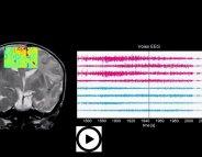 L'imagerie par ultrasons pour analyser le cerveau de Bébé