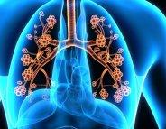 Asthme allergique : une nouvelle piste thérapeutique ?