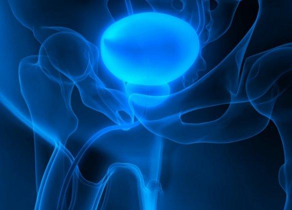 Tumeur de la vessie : entre immunothérapie et réhabilitation