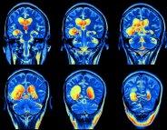 Être bilingue réduit l'impact d'Alzheimer sur le cerveau ?