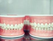 Trucs et astuces sur le port du dentier