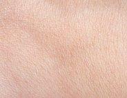 Cancers cutanés : des bactéries protectrices dans la peau ?