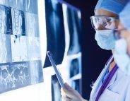 Médulloblastome : des gènes inattendus à l'origine de la tumeur cérébrale ?